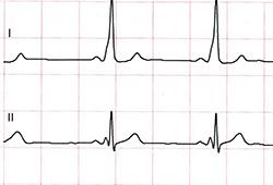 EKG Kurse